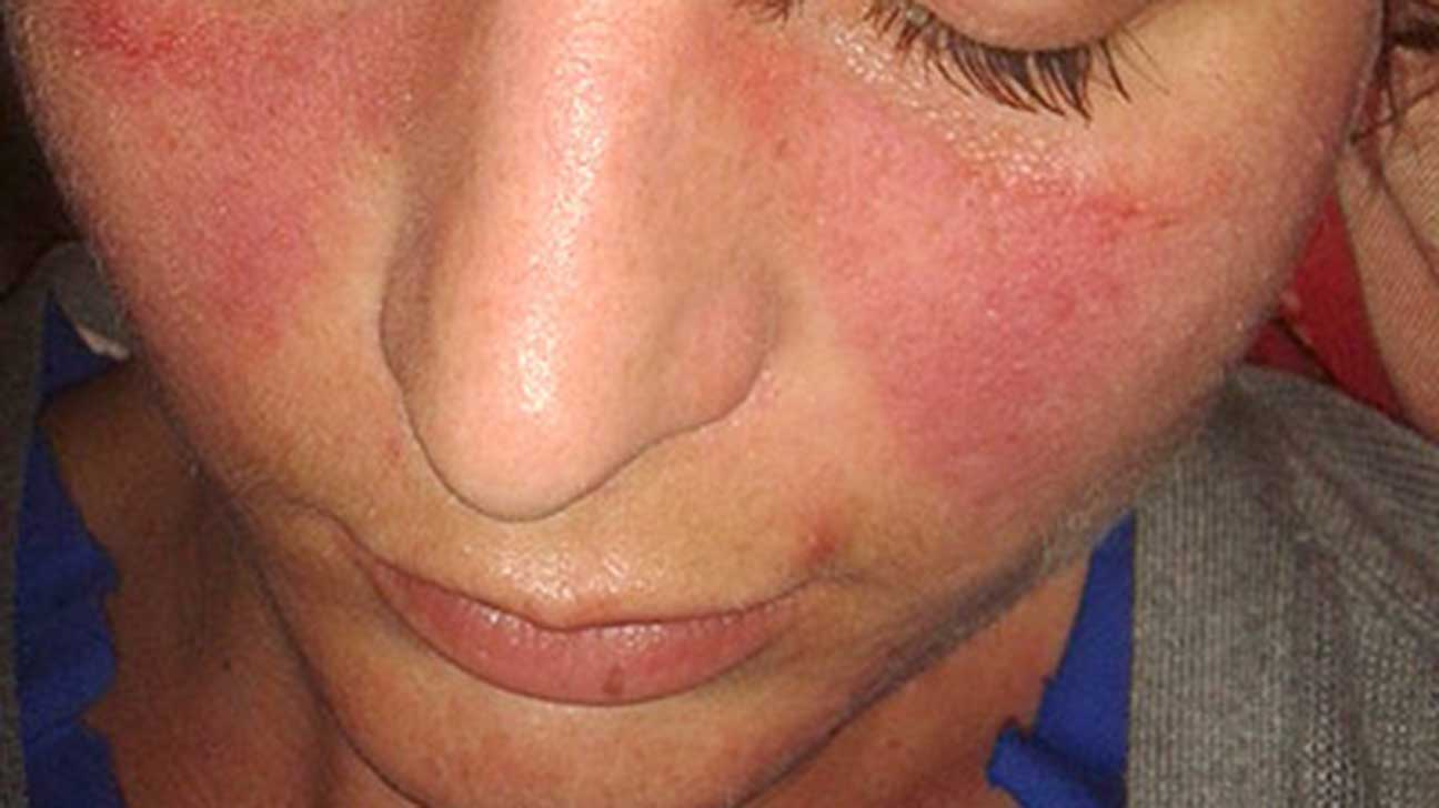 Dry redness facial photo 2