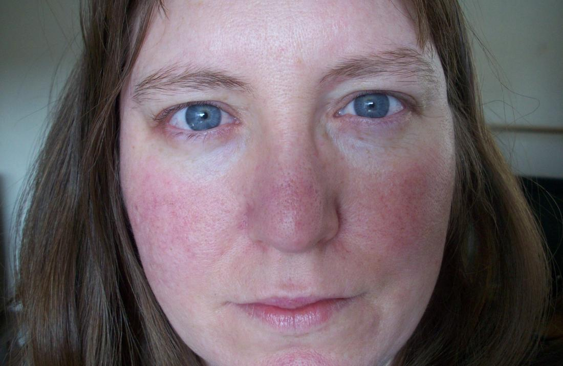 Dry redness facial photo 4