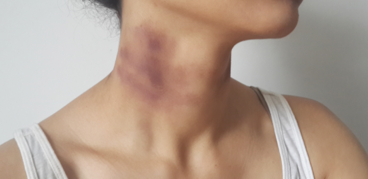 How to give a girl a hickey on her breast